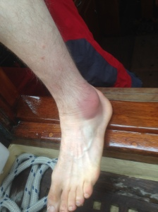 Not what ankles are supposed to look like